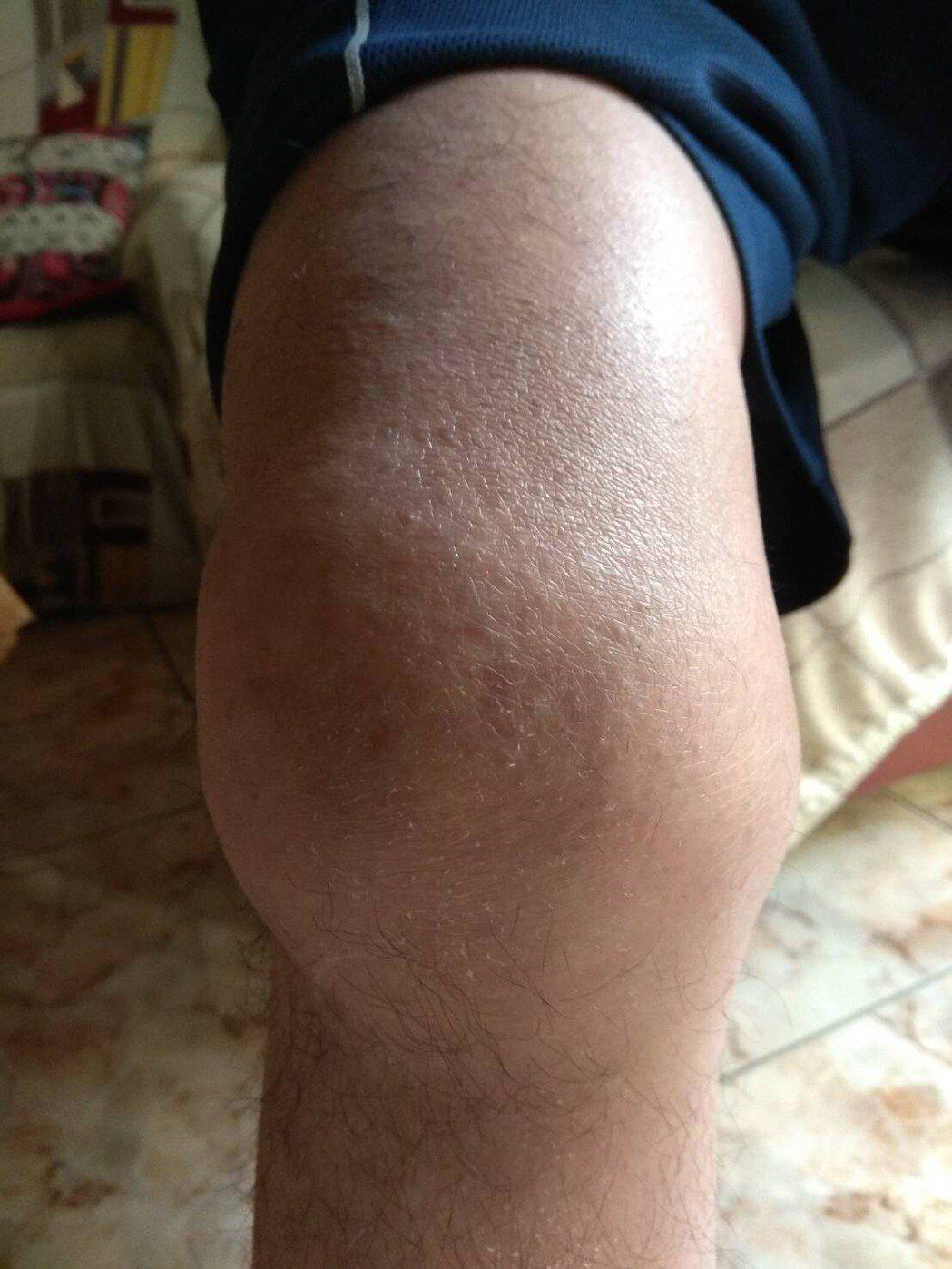 血友病患者關節容易腫大。圖/亞東醫院提供