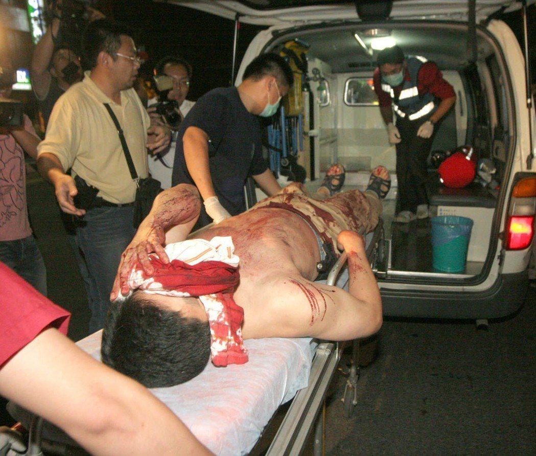 吳永彬(擔架上)臉部中彈後血流如注,經送醫急救,發現彈頭碎片與脆弱的腦部僅差0....
