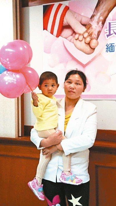 2歲緬甸女童接受長庚醫院治療後,改變必須截肢的命運。 圖/長庚醫院提供
