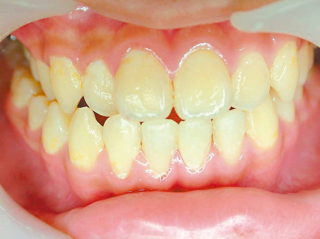 圖二:樹脂治療後 圖╱陳敏慧提供