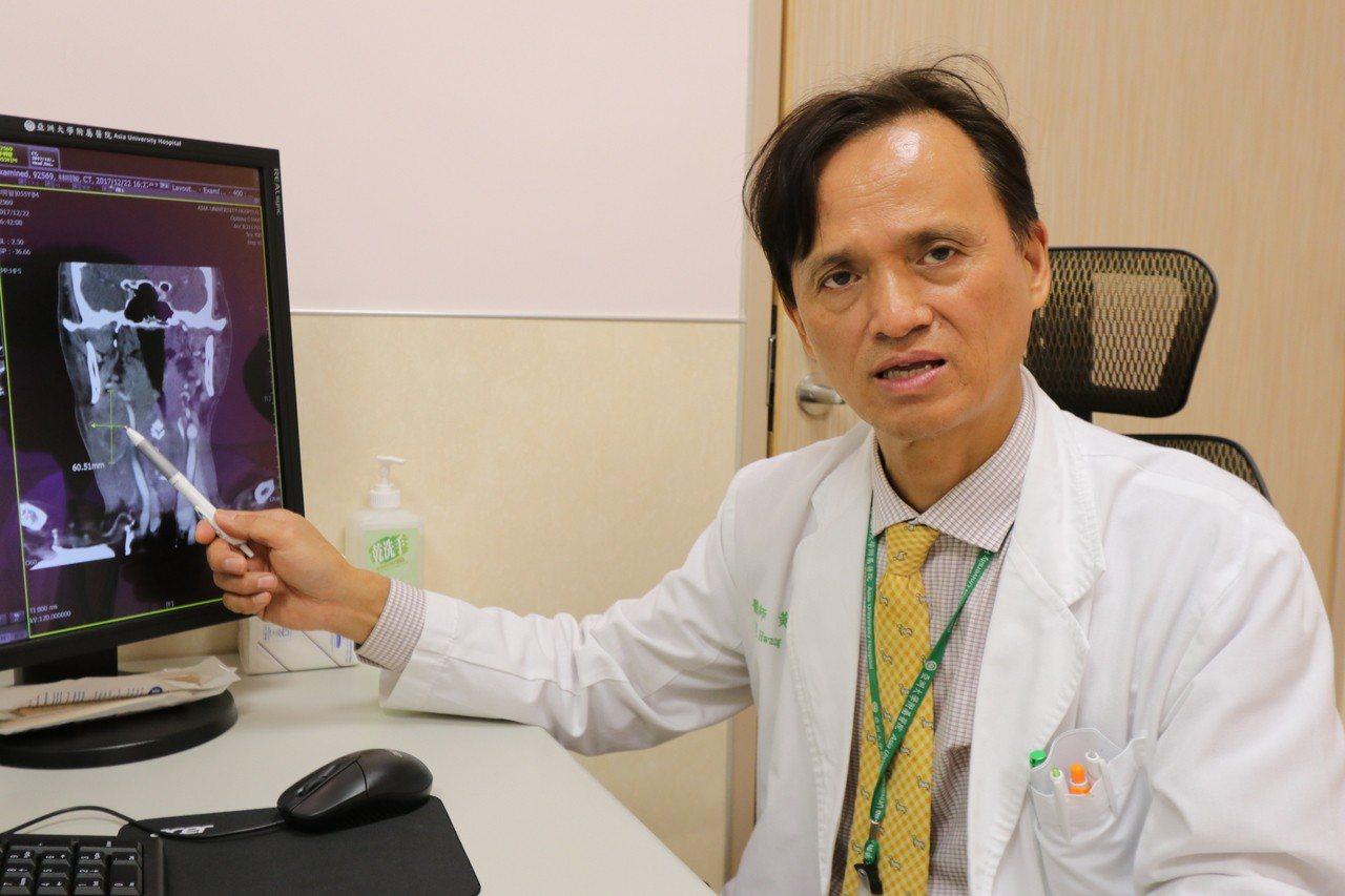 亞洲大學附屬醫院癌症中心副院長暨血液腫瘤科主任黃文豊指出,頭頸部癌進展快,摸到硬...
