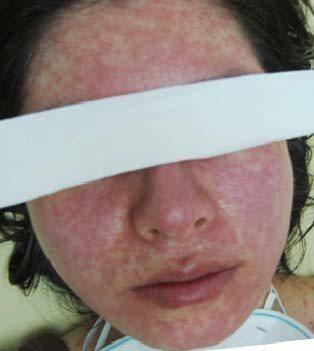 麻疹發病後,從臉部到身體四肢都會有紅疹。圖/示意圖,新北市衛生局提供