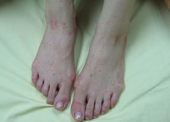 麻疹會讓皮膚出現紅疹。圖/示意圖,新北市衛生局提供