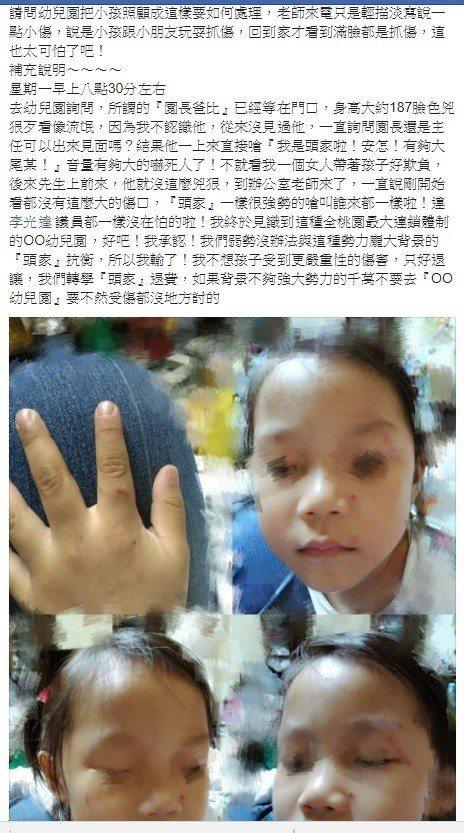 徐姓家長在臉書控訴女兒從幼兒園回家滿臉抓傷,到幼兒園了解遭嗆叫議員來也沒在怕。圖...