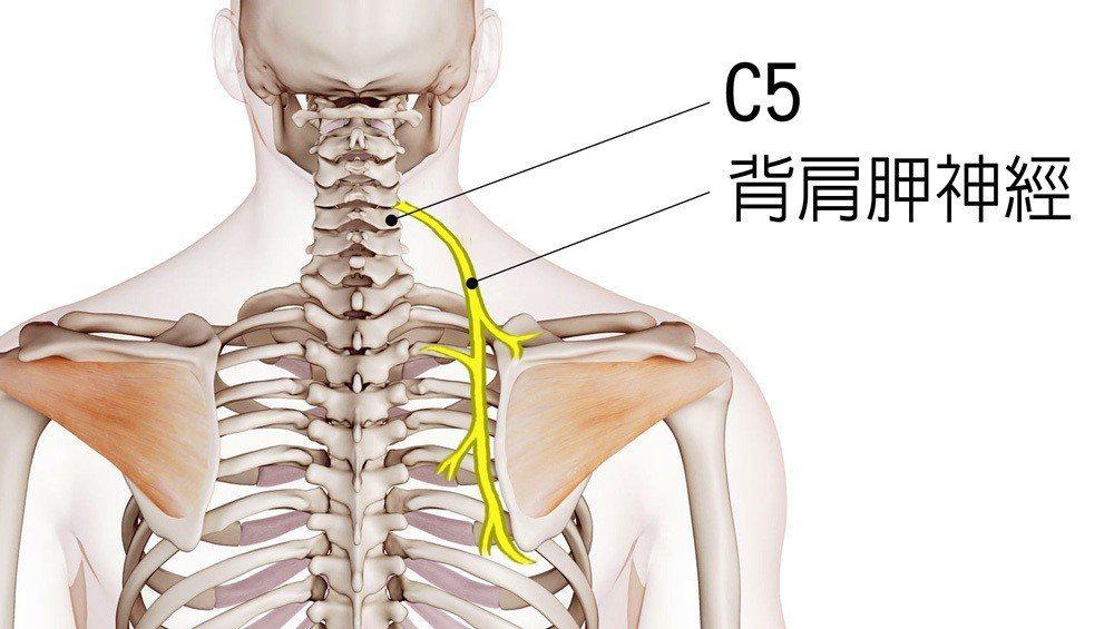 背肩胛神經是膏肓痛主要元兇 圖/菁英診所 提供