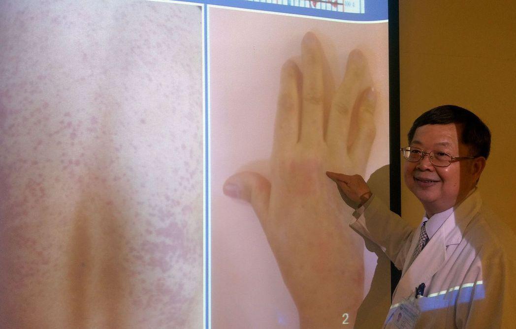醫師陳得源說明,成人史笛兒氏症患者易出現鮭魚紅的紅疹。記者趙容萱/攝影