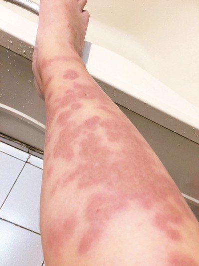 身上紅疹面積逐漸擴大。 圖/梁惠雯提供