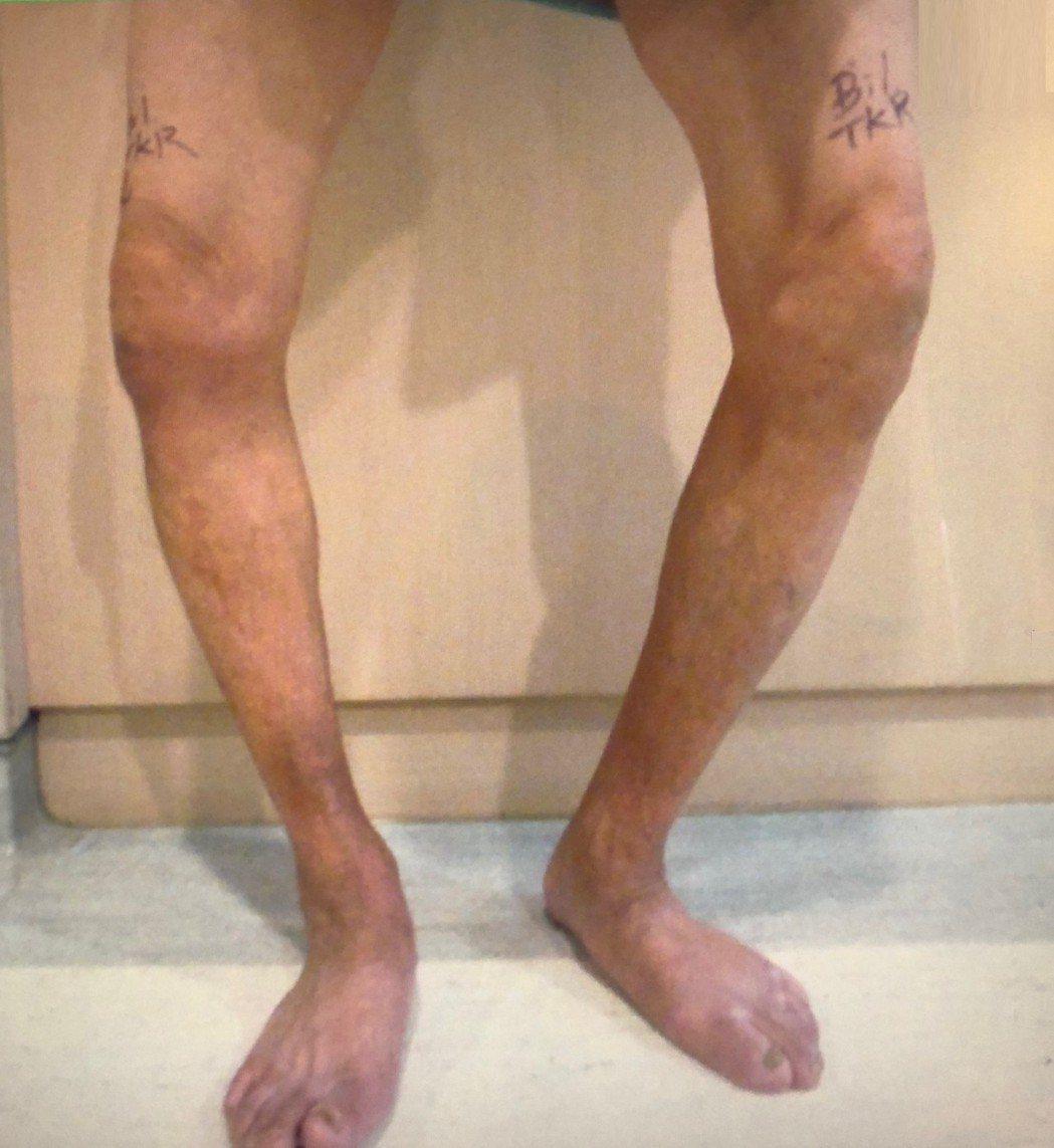 老翁雙膝內側軟骨磨損,雙腳呈現嚴重的O型腿。圖/大千綜合醫院提供