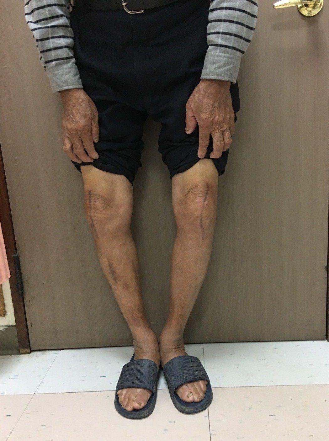 老翁經兩側人工膝關節置換手術,大幅改善膝蓋關節變形的狀況。圖/大千綜合醫院提供