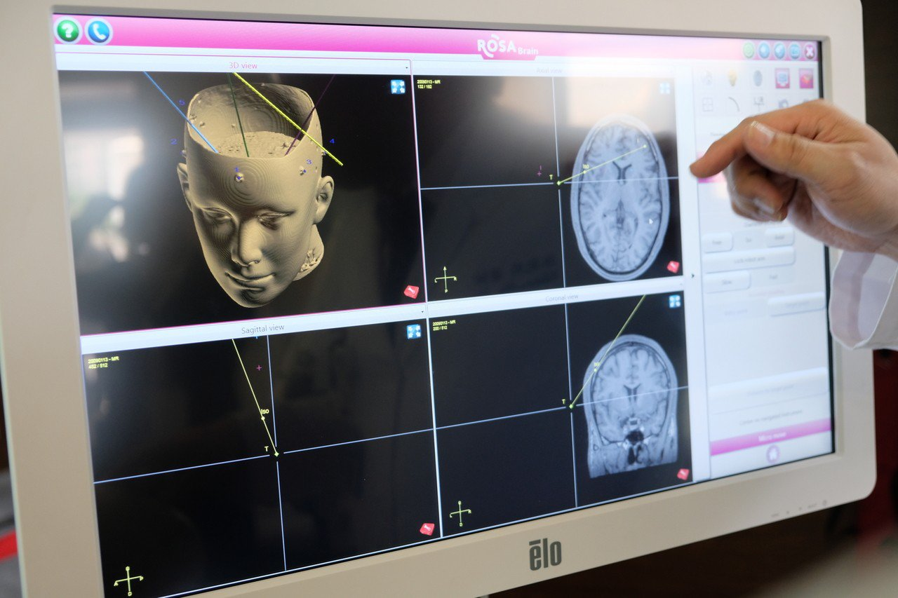 醫師只要輸入病人影像等資訊,ROSA Spine 機械手臂就會自動算出最精確的位...