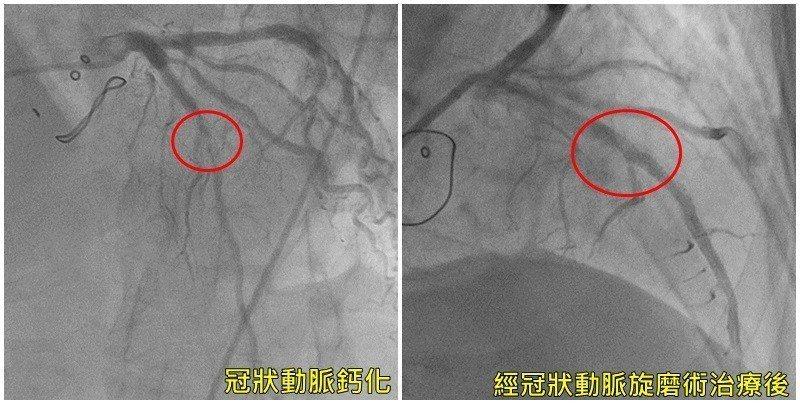 心血管鈣化程度嚴重,經以「冠狀動脈旋磨術」先磨掉血管壁最硬部位後再放置支架撐開。...