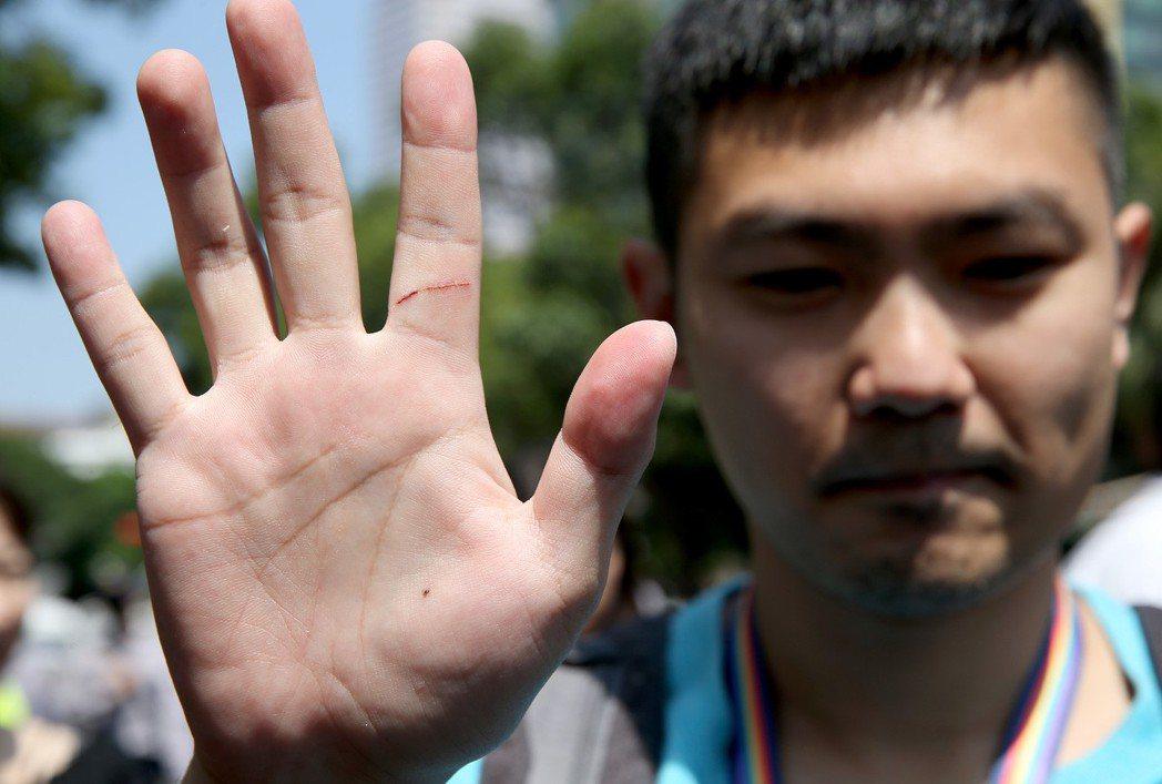 前天反年改抗爭,遭攻擊的民報記者鍾孟軒秀出手上傷勢。 圖/聯合報系資料照片