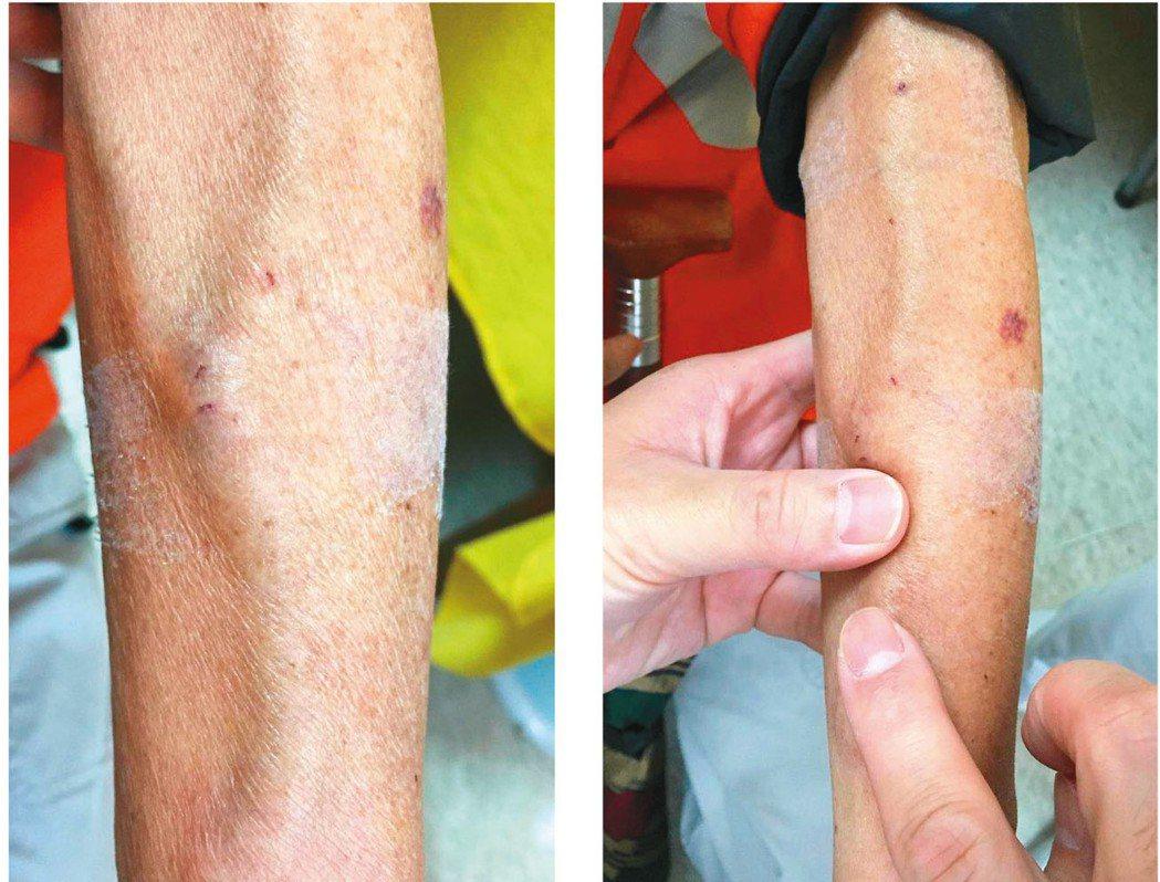 圖1 左為透析血管,是動脈化之表淺靜脈,右為指腹觸診透析血管。 圖/唐德成提供