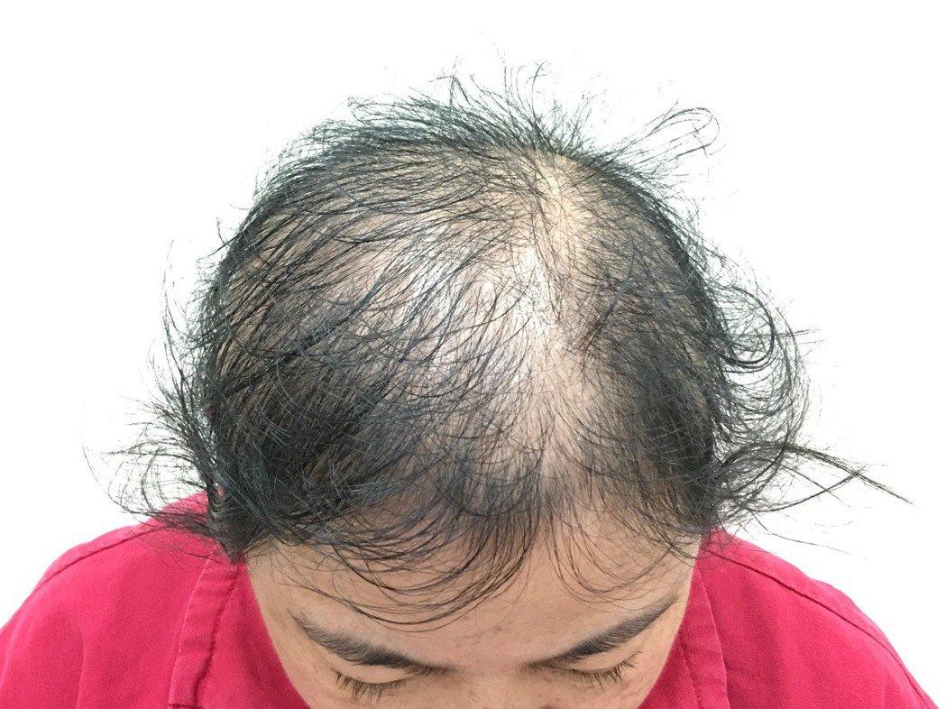 高市大同醫院皮膚科主任吳青穎說,年輕女性掉髮多因過度減重、飲食不均導致鐵蛋白嚴重...