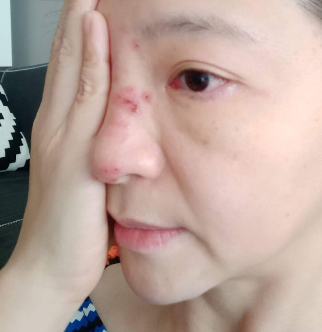 張珮珊臉上長了帶狀皰疹。圖/摘自臉書