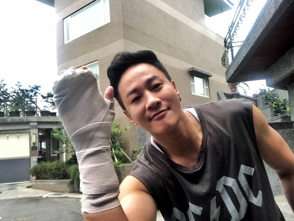 何潤東右手受傷。圖/摘自臉書
