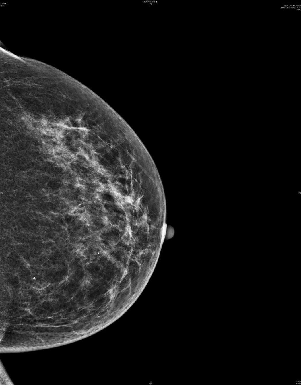 此為正常的乳房攝影影像。圖/阮綜合提供