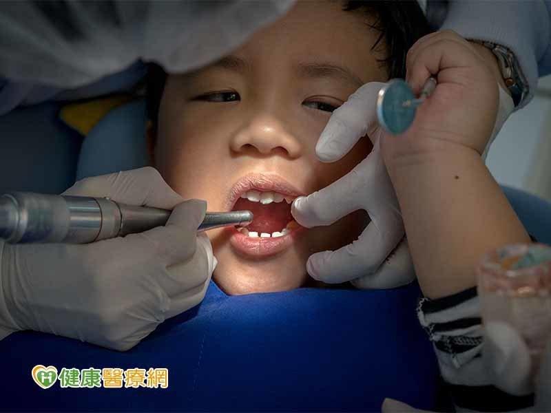 兒童抗蛀牙塗氟 這些事要注意!