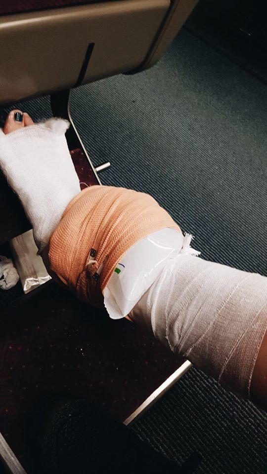 ALBEE的傷勢。圖/ALBEE臉書