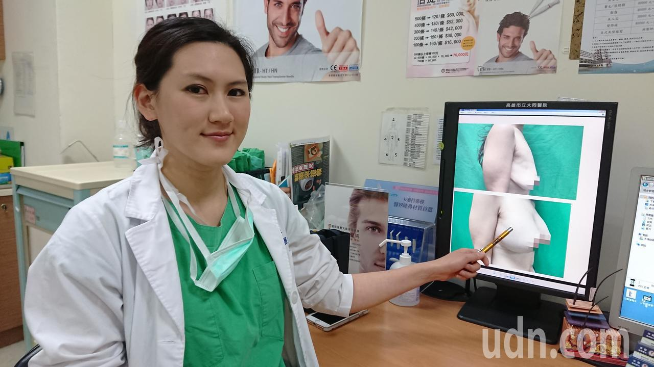 高雄市立大同醫院整形外科主治醫師賴雅薇說,不少年輕女生以激烈方式減重,雖在短時間...