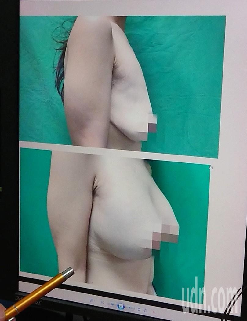 一名25歲網路直播主,為在產後恢復身材,3個月內瘦下24公斤,原本傲人D奶下垂成...