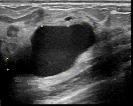 黃女手術前在超音波下的乳房纖維腺瘤。圖/台北慈濟醫院提供
