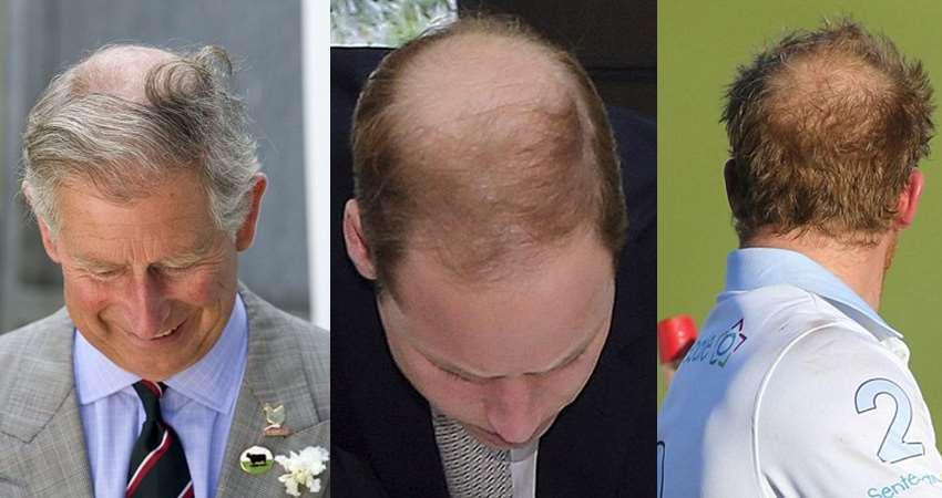 令英國王室都困擾的髮量問題,英國查爾斯王儲(左)威廉王子(中)哈利王子(圖片取自...