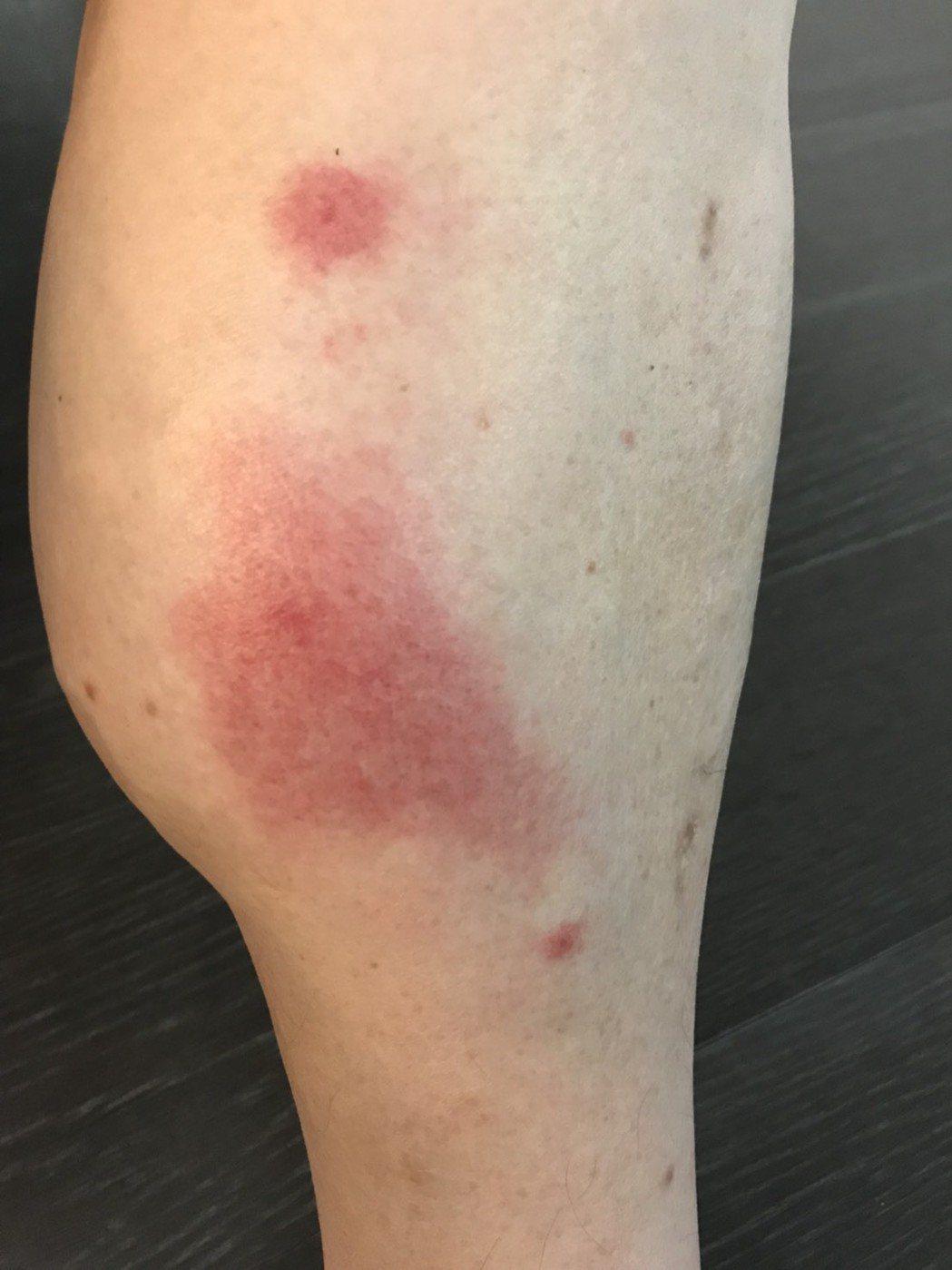 胡瓜的小腿整個腫起來。圖/東森提供