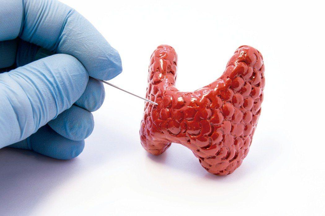 甲狀腺腫瘤是一種常見的疾病。近年來,發生率逐步攀升,約1萬人中就有1至2人可能罹...