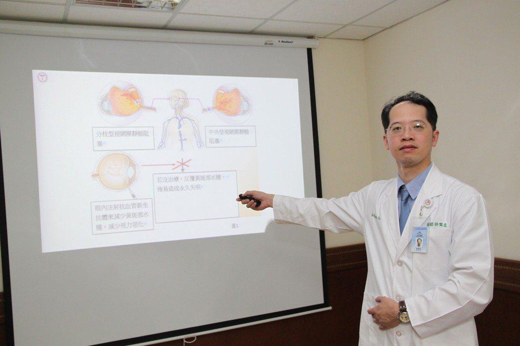 中山醫學大學附設醫院眼科醫師許閔彥指出,所謂的眼中風是指視網膜的靜脈發生阻塞,嚴...