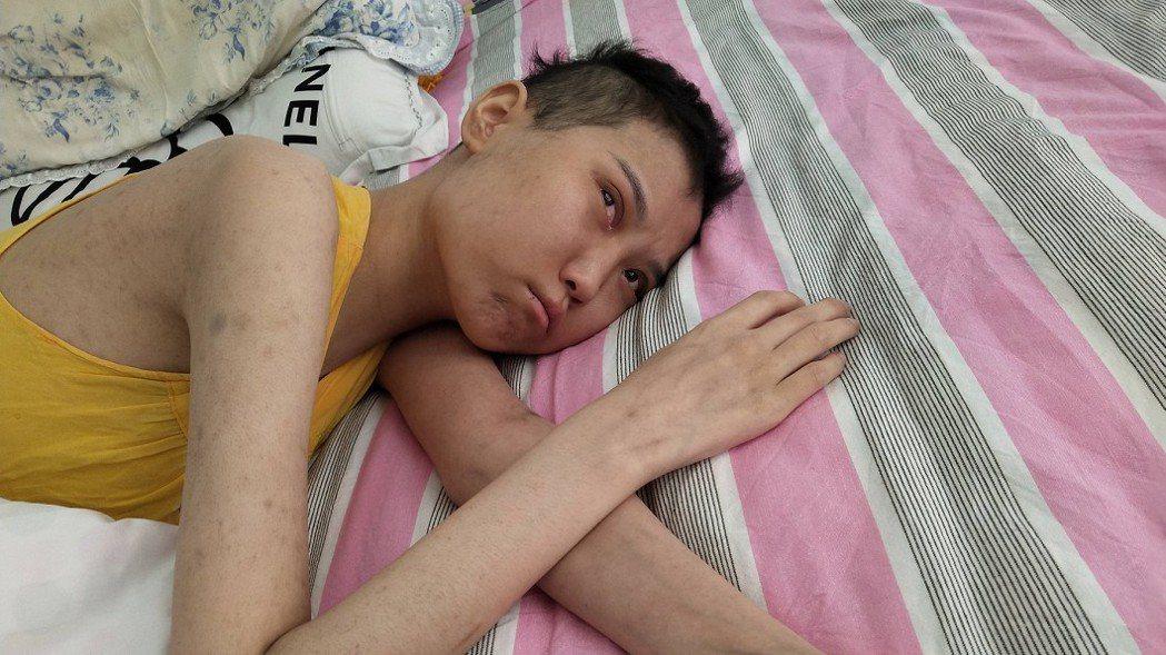趙晴年紀輕輕就罹患血癌。(圖/翻攝自騰訊新聞)