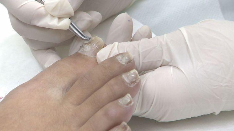 一名從事櫃姐二十多年的42歲女性,因為長期久站,導致腳趾甲發生嚴重甲溝炎。攝影/...