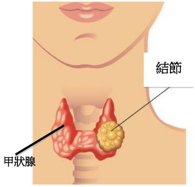 圖一:甲狀腺及甲狀腺結節示意圖