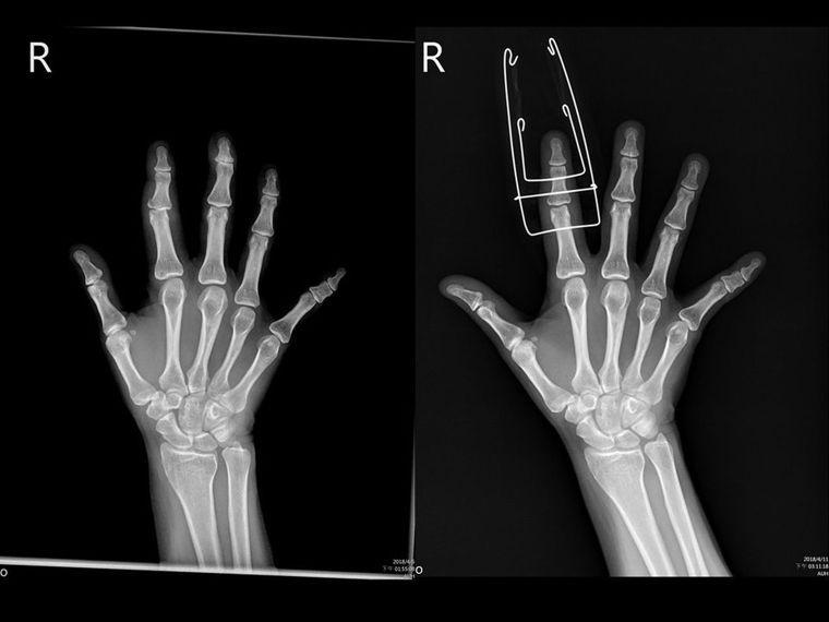 「鈴木支架外固定手術」。圖/亞大醫院提供