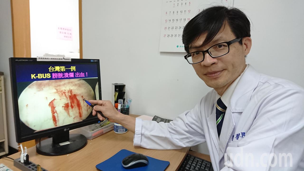 高市聯合醫院泌尿科主治醫師蔡秀男2003年從臨床案例發現,吸食K他命會導致膀胱纖...