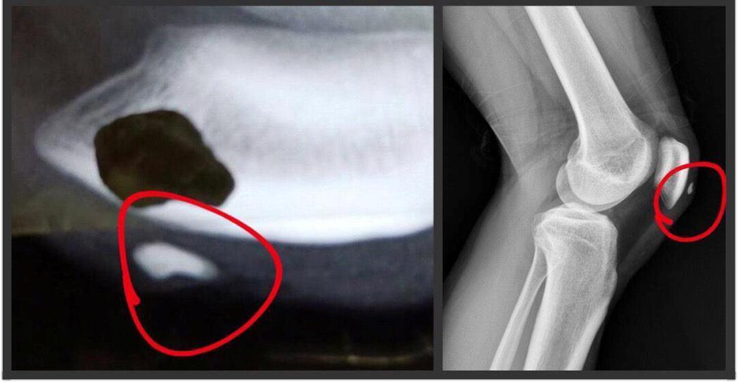 網友提供急診時拍攝的X光片,怒責當時清楚可見膝蓋內有異物,醫院卻不處理。圖擷...