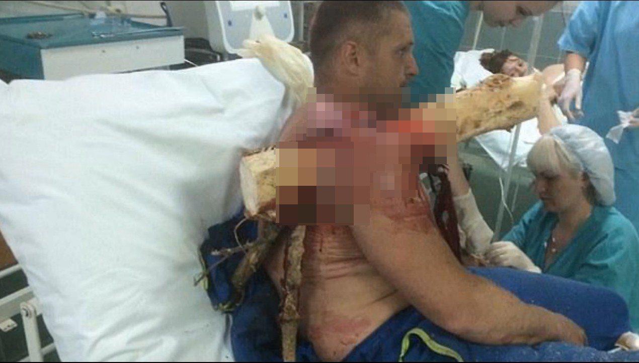 男子被巨大樹枝穿肩,醫生對其作緊急處理。圖擷自Youtube