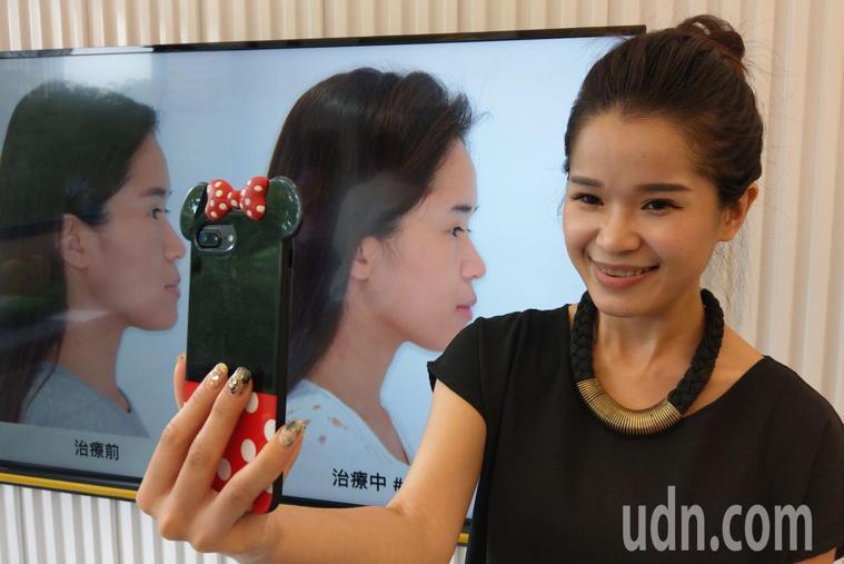 台中市31歲新娘祕書邱夢萍(右)經接受隱形牙套矯正,變「正」妹。記者趙容萱/攝影