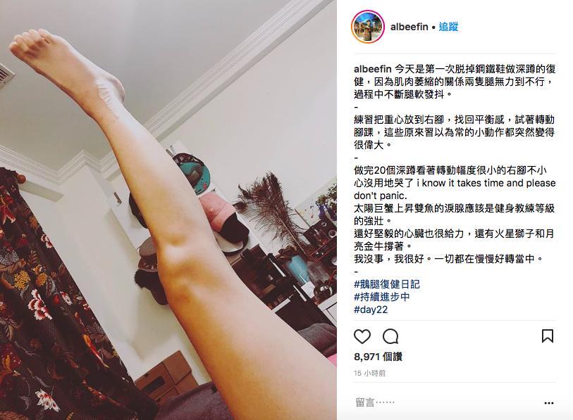 Albee於IG分享傷後22天的病況,可見腳踝明顯術後疤痕。圖/摘自IG