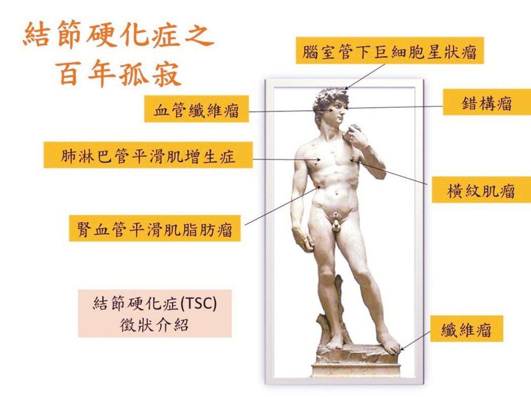 醫界以大衛雕像來形容結節性硬化症之百年孤寂,早在一兩千年前、數百年前,就有人罹患...