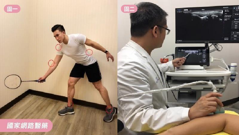 圖一羽球常見運動傷害部位(周建勳治療師示範)圖二肌肉骨骼超音波檢查