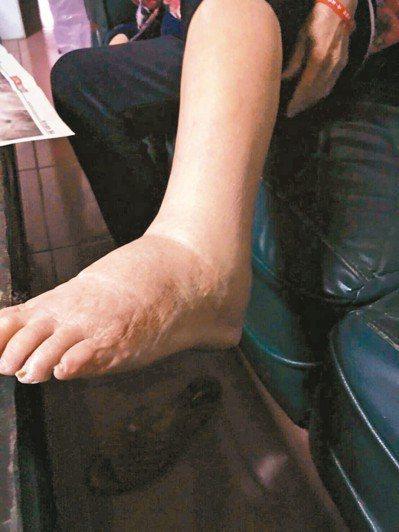 髂靜脈壓迫症候群高風險族群,如果小腿腳踝持續腫脹,就應積極就醫。 圖╱國泰醫院提...