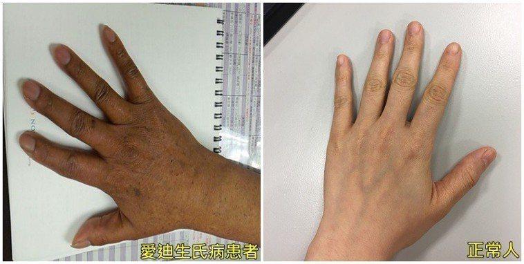 罹有「愛迪生氏病」的患者與正常手的顏色對比,要明顯黑了一些。圖/