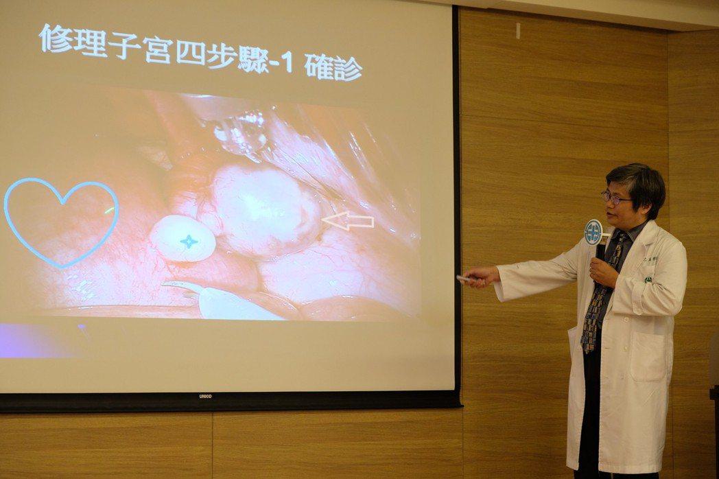 婦產部醫師莊乙真解釋如何用達文西手臂切除子宮肌瘤。記者張曼蘋/攝影