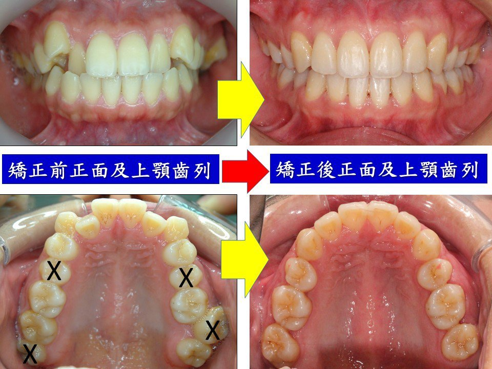 嚴重齒列不整的患者,依照牙醫師的診斷拔除不必要的牙齒,增加矯正空間,幫助齒列變得...