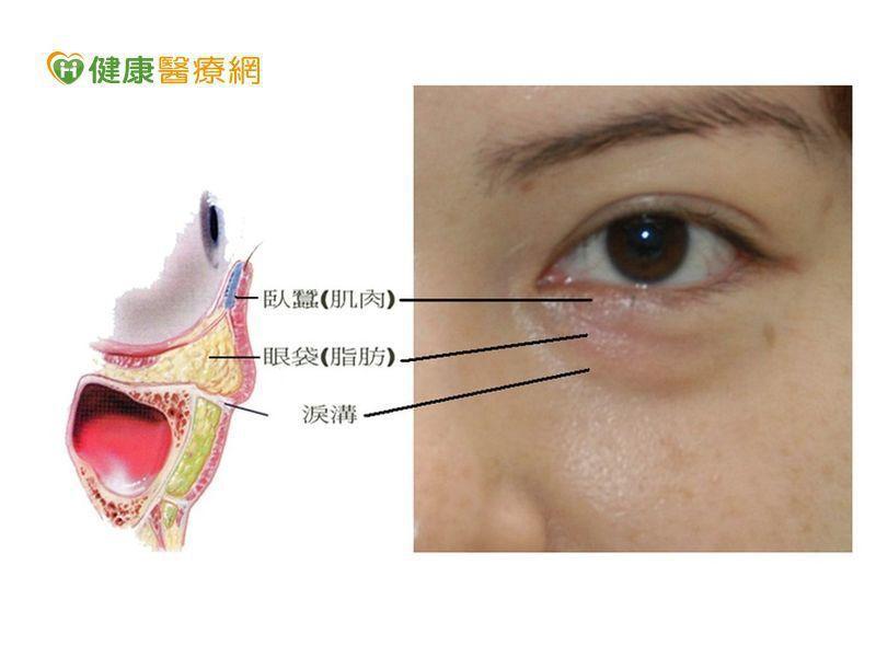 眼袋年齡層降低  過度使用3C產品成誘因