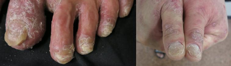 指甲黃黃、灰灰、醜醜不見得是「灰指甲」,可能是關節炎警訊。圖/中山大學附設醫院皮...