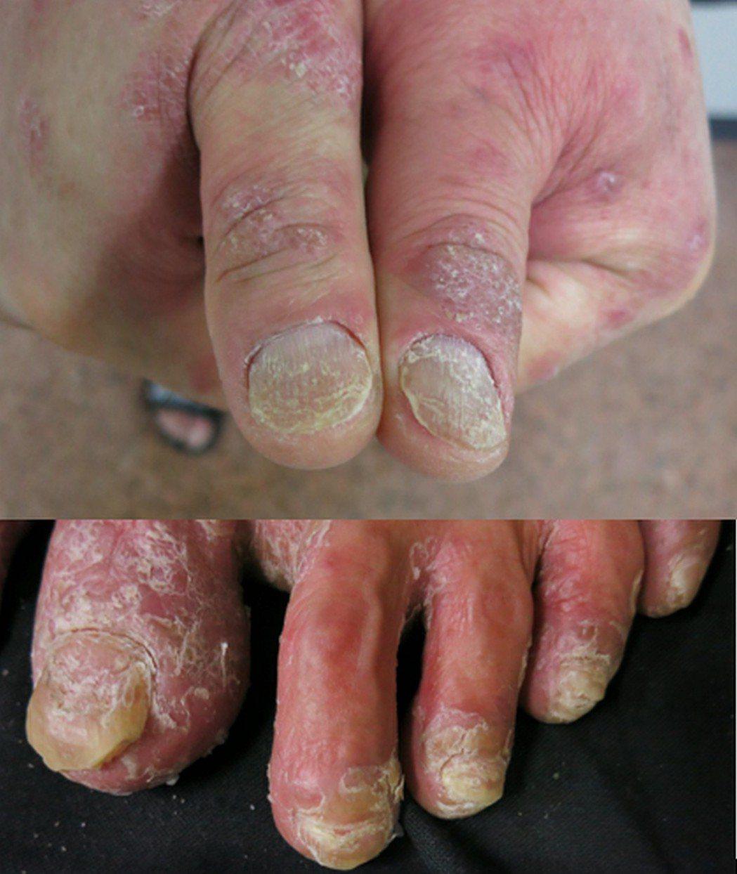 圖為乾癬指甲病變情形。 (中央社)