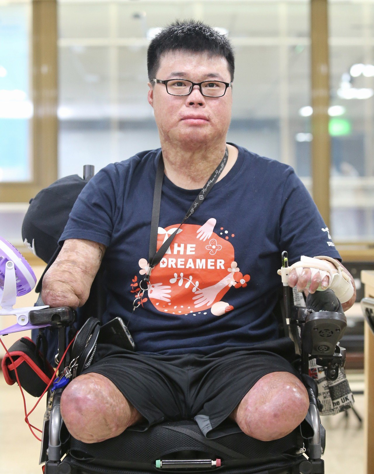 八仙傷友黃博煒。記者林伯東/攝影
