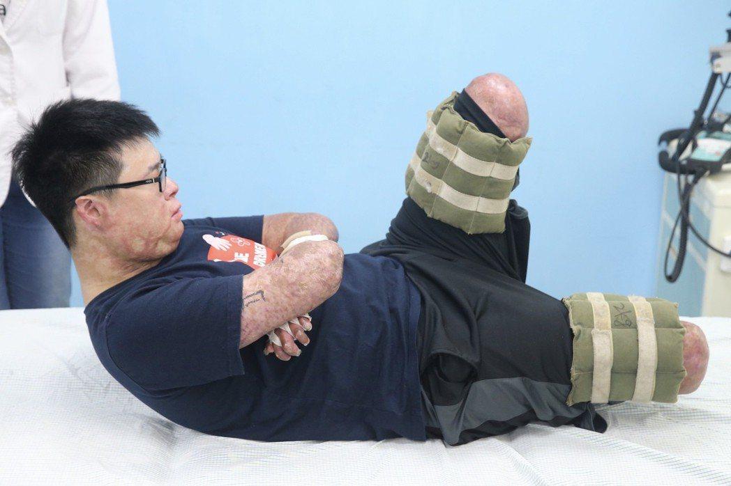 八仙傷友黃博煒認真做復健。記者林伯東/攝影